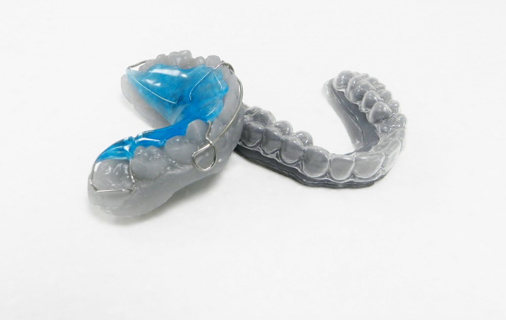3D Printed Retainers