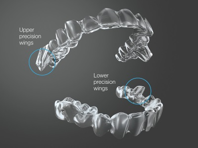 Invisalign Mandibular Forward Advancement