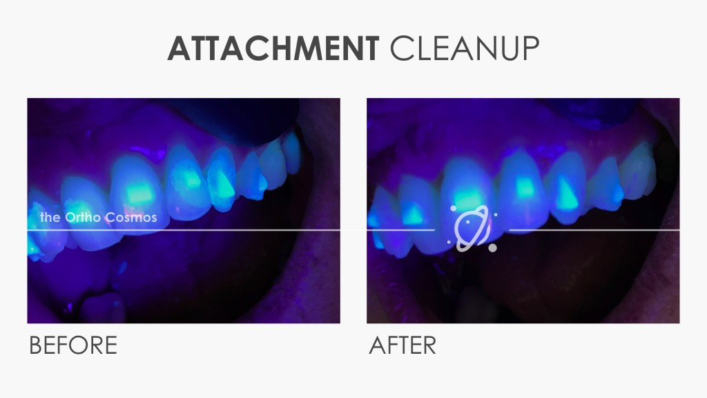Invisalign Attachment Flash Cleanup