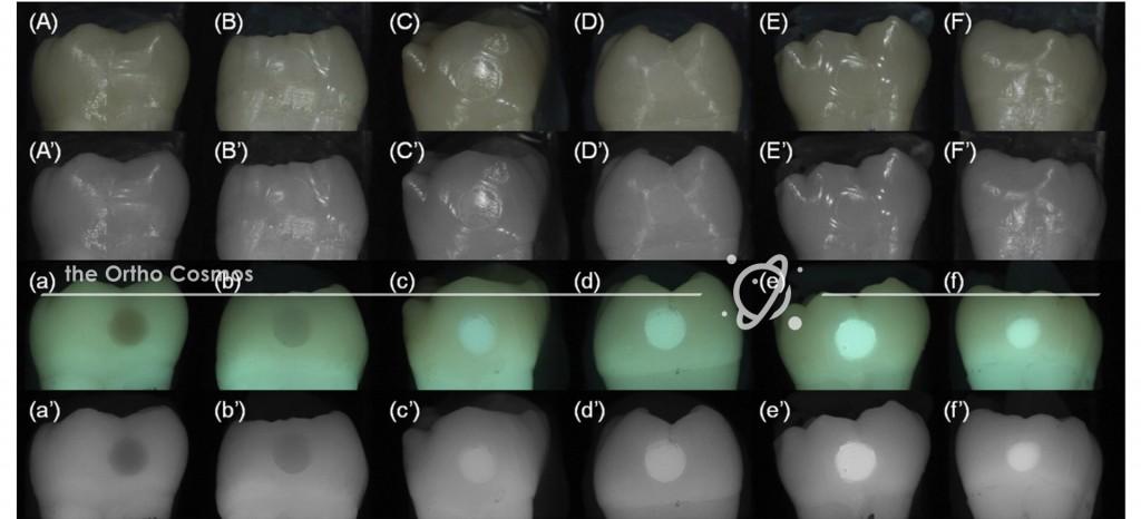 Invisalign Attachment Fluorescence