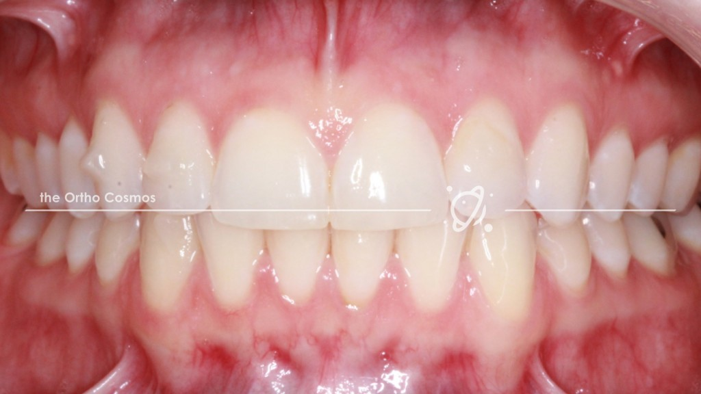 Invisalign Attachment Photo