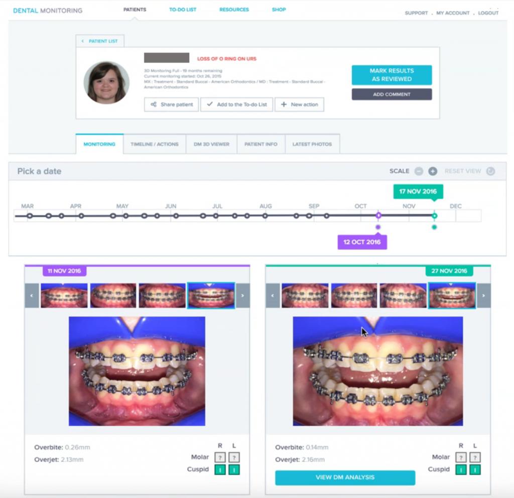 Dental Monitoring Interface