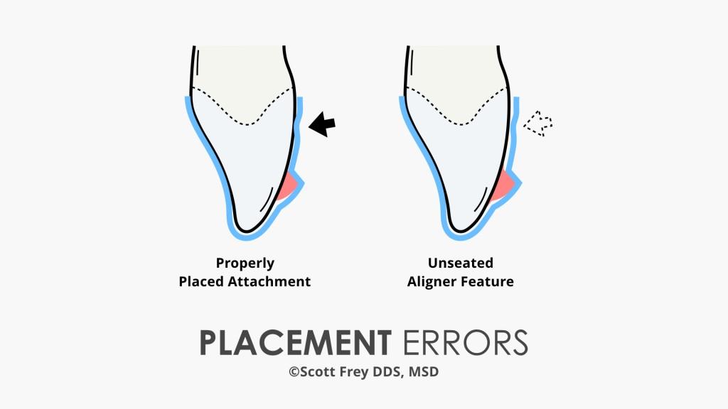 Optimized Attachment Placement Error