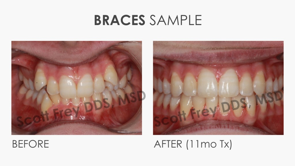 Braces Sample Before & After