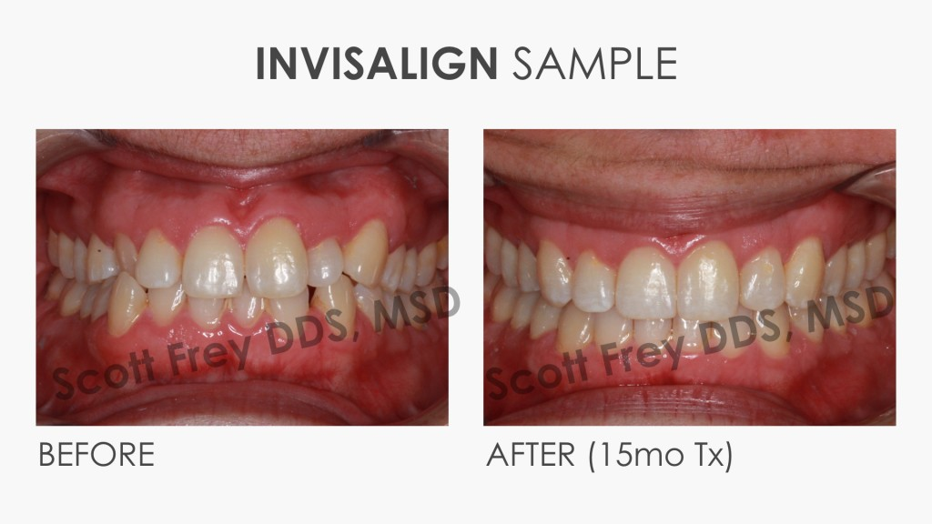Invisalign Sample Before & After
