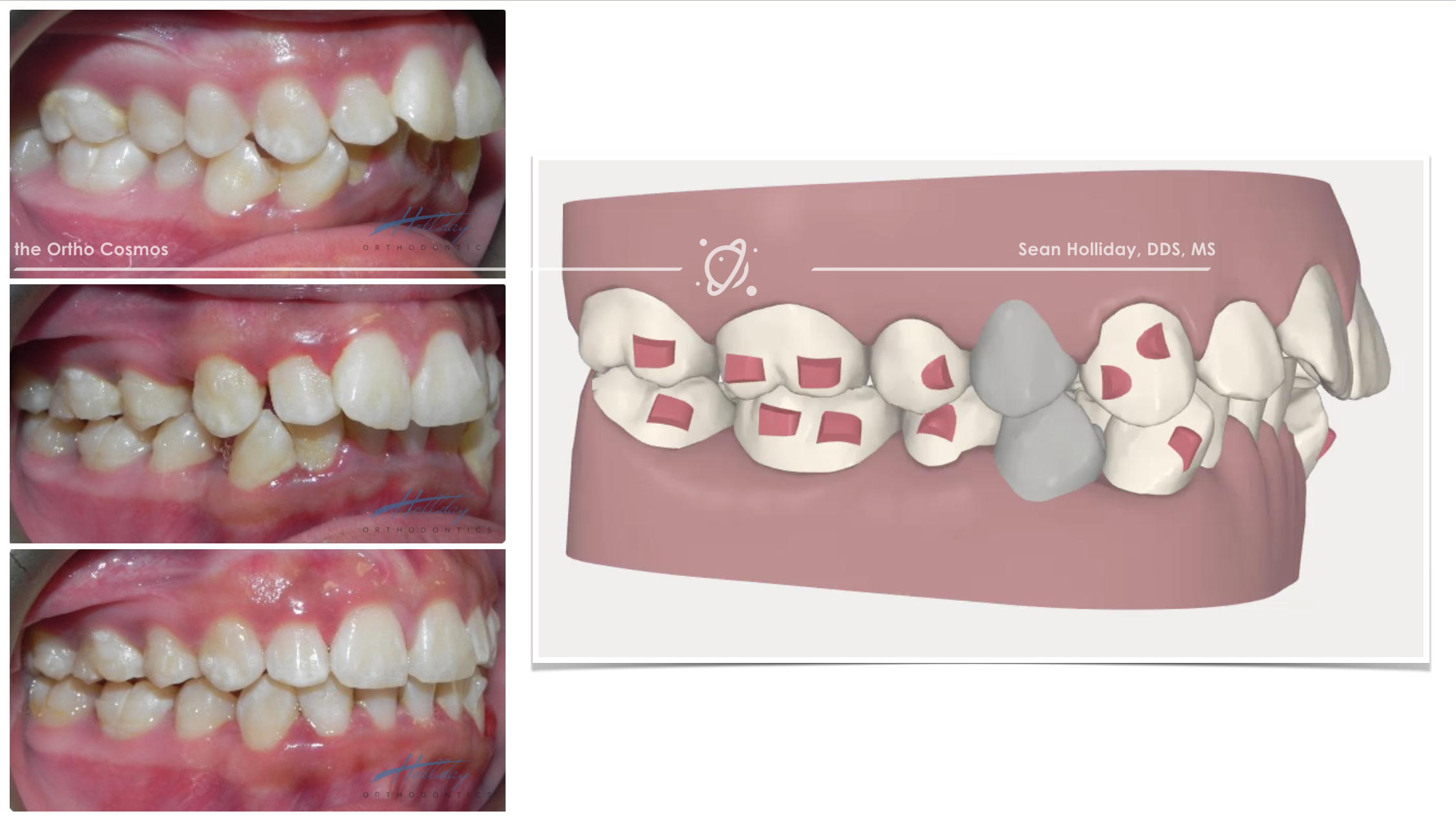 Extraction Treatment With Invisalign The Ortho Cosmos