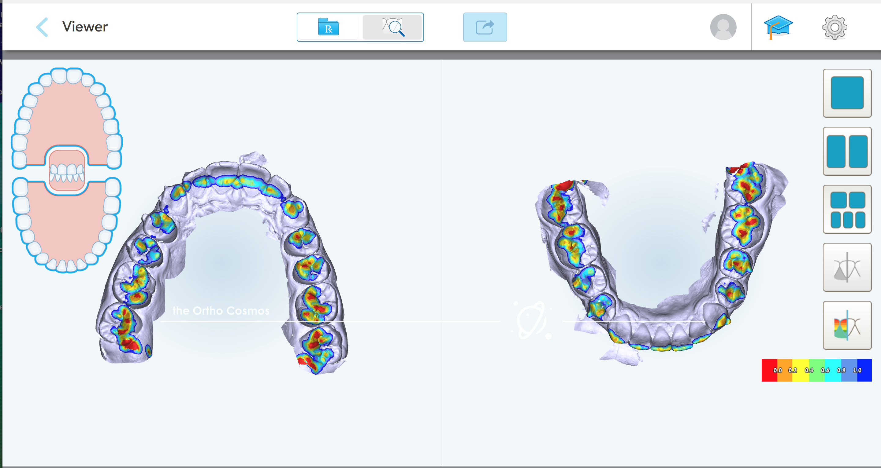 Occlusal Contacts Invisalign Scan